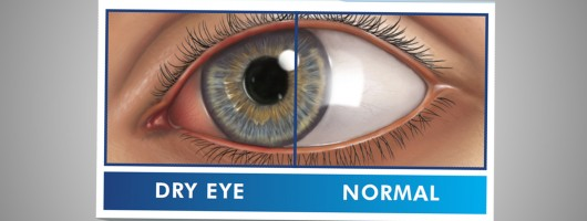 Prevent Dry Eye this winter